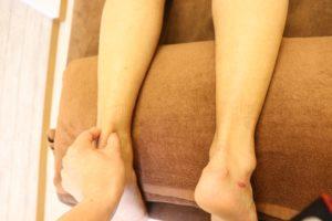 【症例報告】左アキレス腱の痛み 40代ランナー