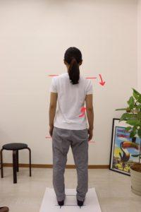 【症例報告】仕事や家事をしていると、右の腕がシビれてきます 20代 女性 介護職 フットサル/スノーボード