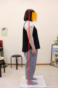 【症例報告】数年前から首、肩、背中、腰がずっと痛いです 手は時々シビレます 介護職 20代 女性 富士市