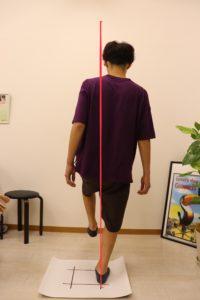 【症例報告】右膝の内側が痛いです 大学1年 サッカー