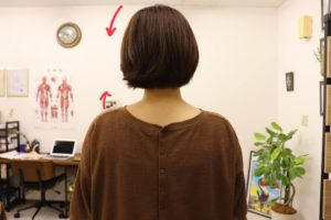 Read more about the article 【症例報告】左の肩が痛いです 時々はずれてしまいます 20代 女性 会社員/ソフトボール