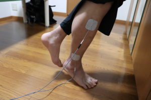 【症例報告】右足関節の捻挫 高2 サッカー