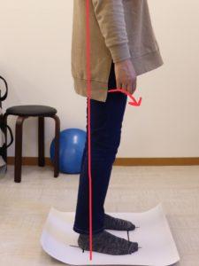 【症例報告】左のお尻からもも裏にかけて痛みます 40代 女性 介護職 腰痛・坐骨神経痛 富士市