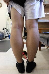 【症例報告】左のふくらはぎが伸ばすと痛いです 肉離れ 30代 社会人 バスケ