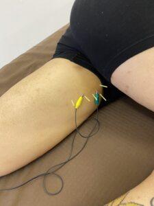 Read more about the article 【症例報告】左の内腿が痛いです 内転筋の肉離れ 20代 男性 サッカー/フットサル